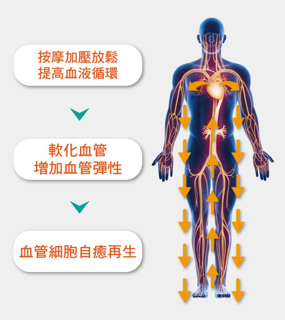 EECP體外反搏 免動刀 讓心血管重拾健康