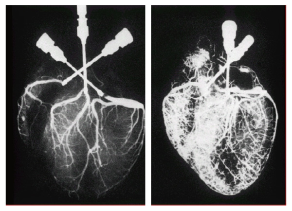 EECP體外反搏療程心臟治療前後