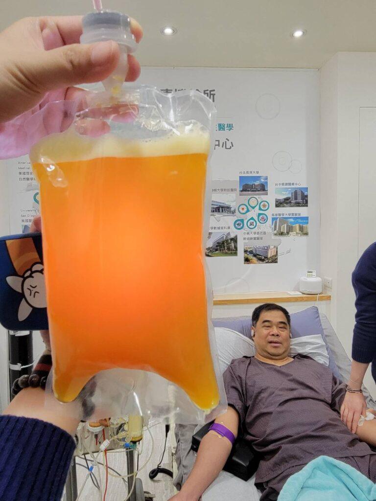 陳大哥血液淨化療程後的廢液